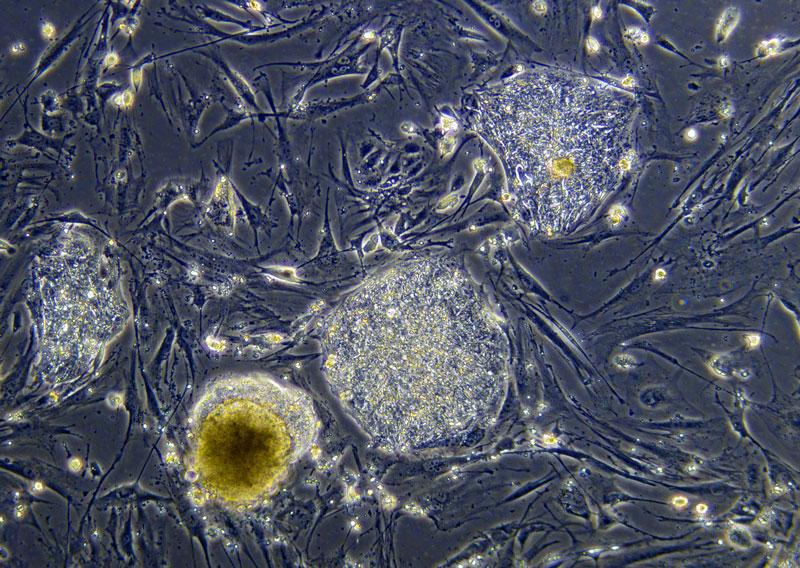 Колония человеческих стволовых клеток