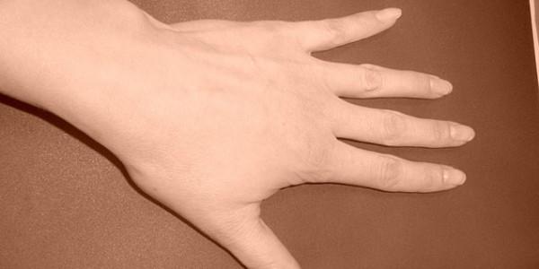 Форма кисти руки