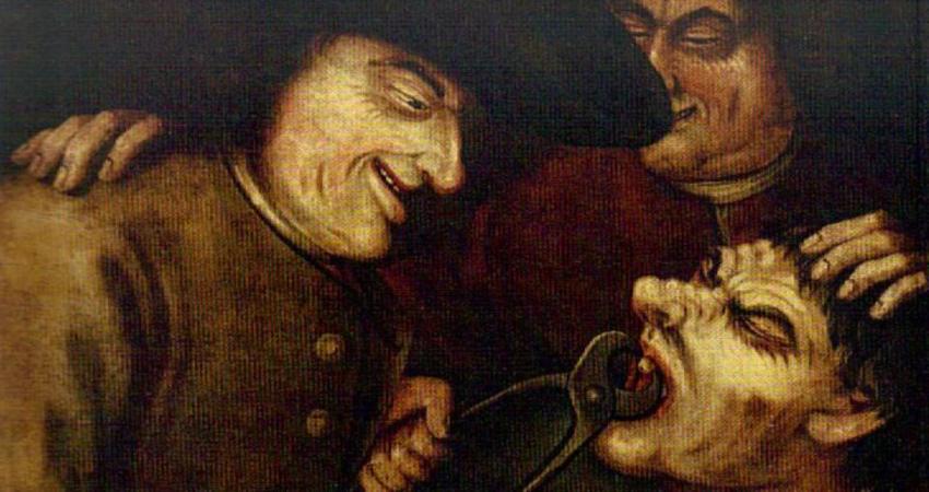 В старину вырывание зубов щипцами было обычное дело